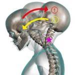 交通事故に遭うと80%の人がなる首のむち打ち症状は、整骨院で治療・改善することが可能~治療編②~