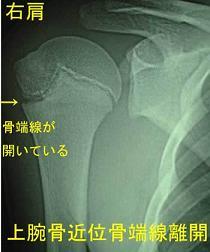 上腕骨骨端線離開