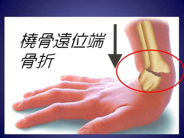 コーレス骨折2