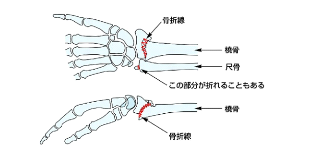 橈骨遠位端骨折