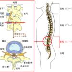 野球・サッカー・ゴルフなど腰の反りや捻りで起こる腰椎分離症とは?