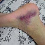 女子中学バスケ部~試合中にリバウンドで足首を内側に捻って紫色に!公式戦まで間に合わせる10日間の治療法